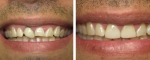 All porcelain crowns on the two front teeth